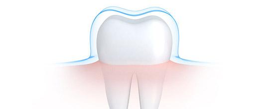 protecting-tooth-enamel-sugar-acid